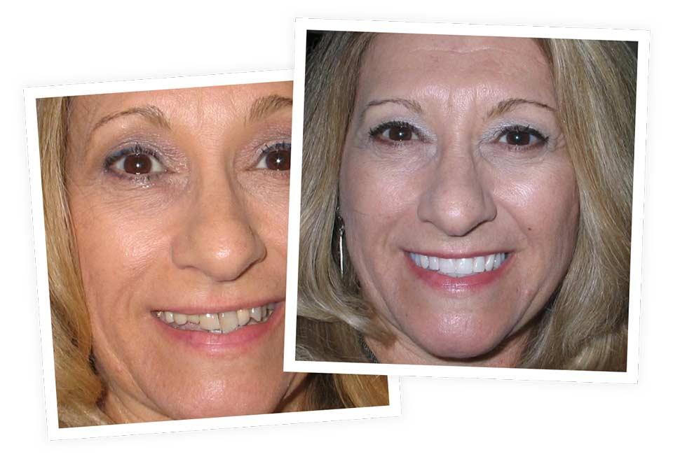 Dental Implants before and after smile at Nevada Facial and Oral Surgery