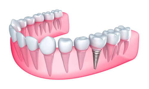 Not Everyone Should Turn to Dental Implants