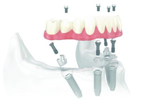 Would Your Mouth Be a Good Candidate for All-on-4 Dentures?