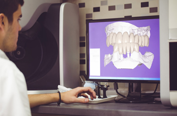 Man sitting at desk looking at a digital dental impression